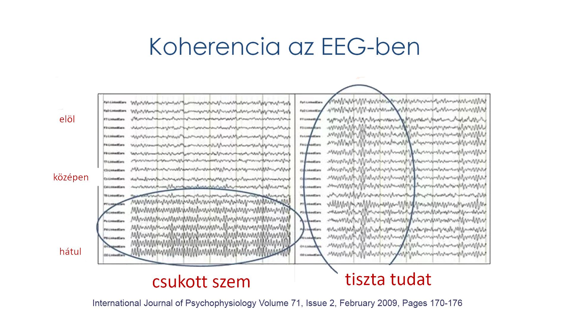Koherencia az EEG-ben